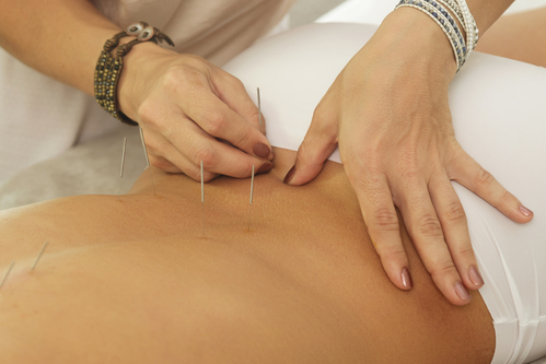 Low Back Pain, Acupuncture