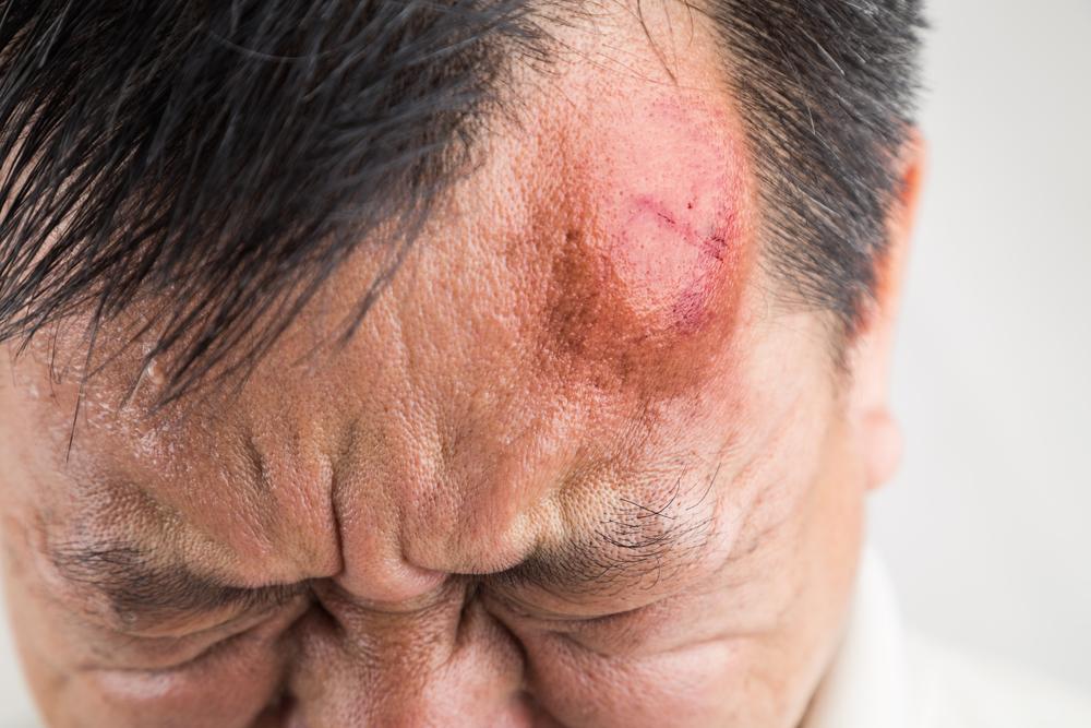 Concussion treatment chiopractors